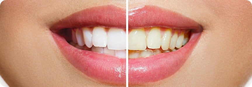 Photo showing actual results of teeth whitening.
