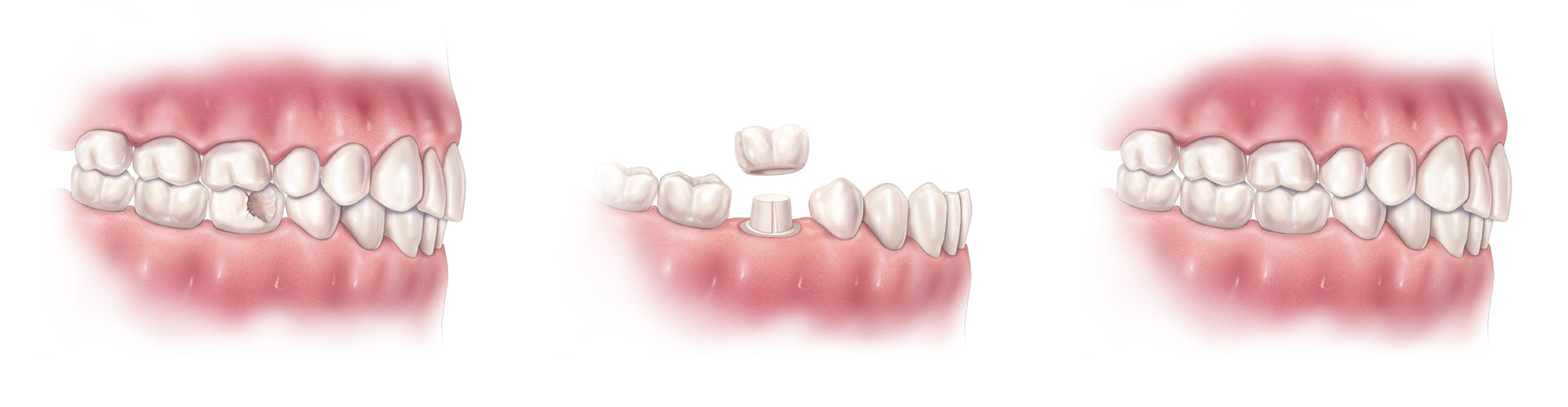 Procedure to prepare and fit dental crowns