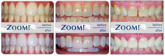 Teeth Whitening results from our Box Hill Dentist