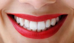 Box Hill Teeth Whitening