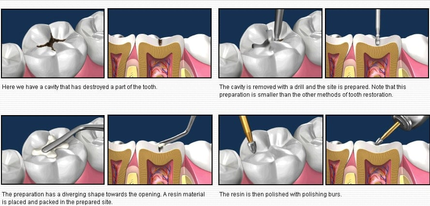 Actual process on having a dental filling at a dental clinic.