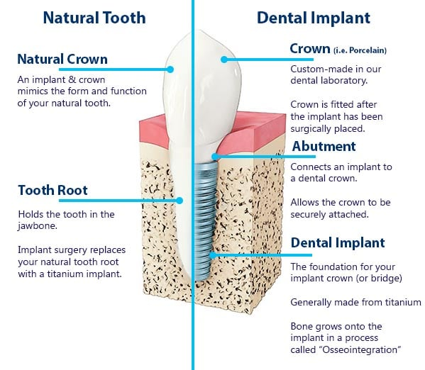 Comparing a natural tooth to a dental implant.