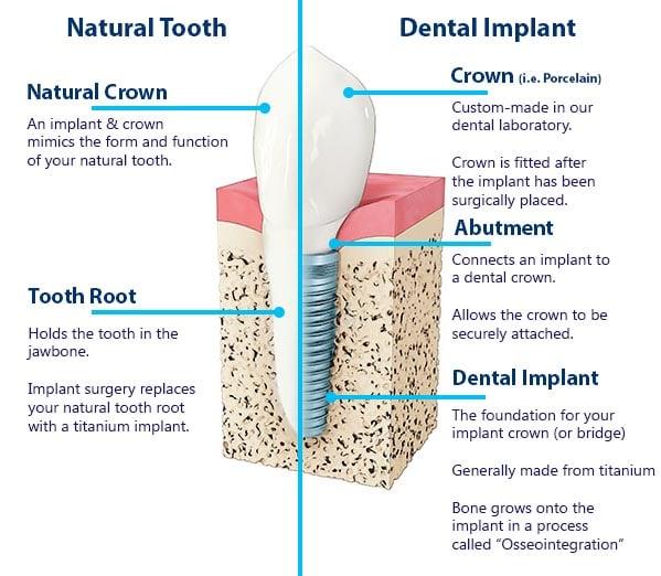 Melbourne Dental Implant Diagram