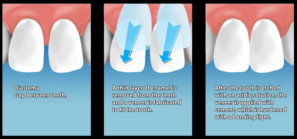 Actual process on having dental veneers.