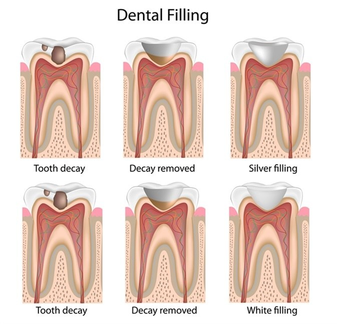 Dental filling steps at our Geelong clinic