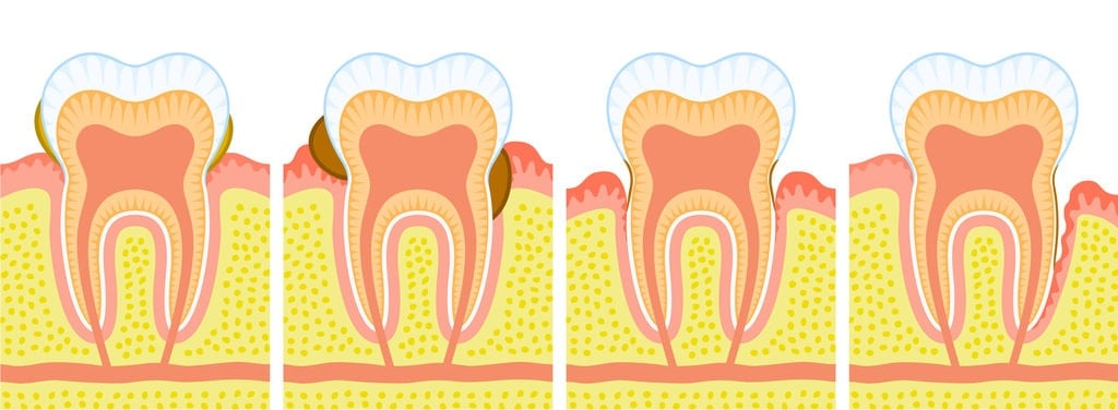 Melbourne Gum Disease Treatment