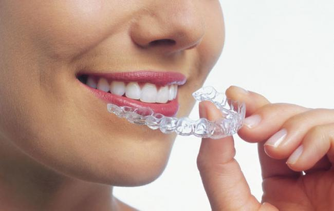 How Much Does Invisalign Cost?