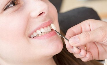 Dental Veneers Melbourne