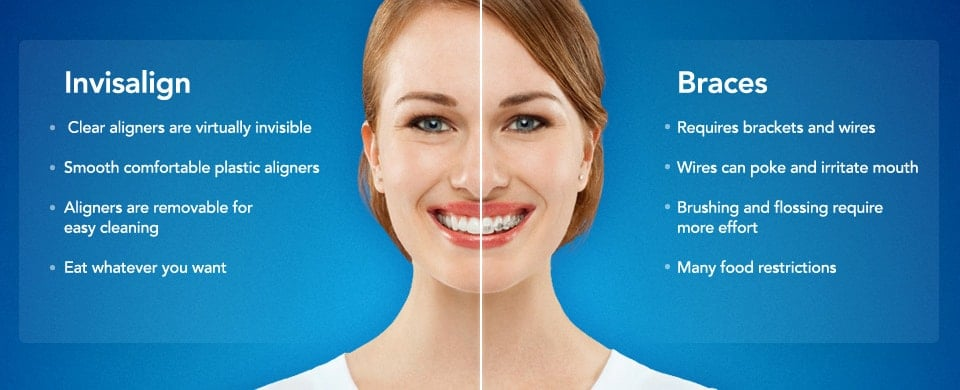Image showing the different treatement options between Invisalign and Braces.