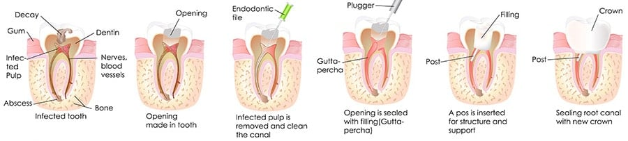 Image showing the different phases of Root Canal Tretament.