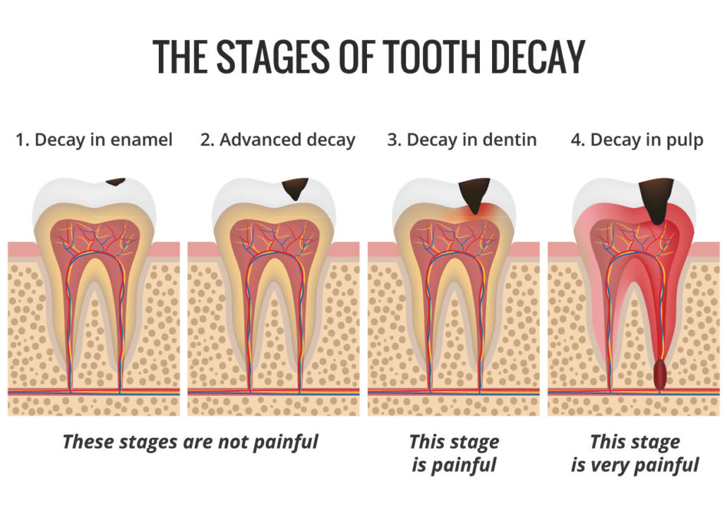 Melbourne Tooth Decay Treatments