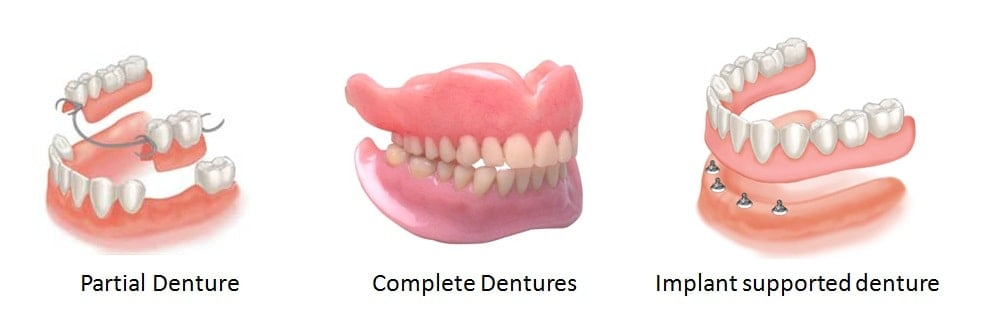 Image showing the different types of dentures including complete and partial dentures.