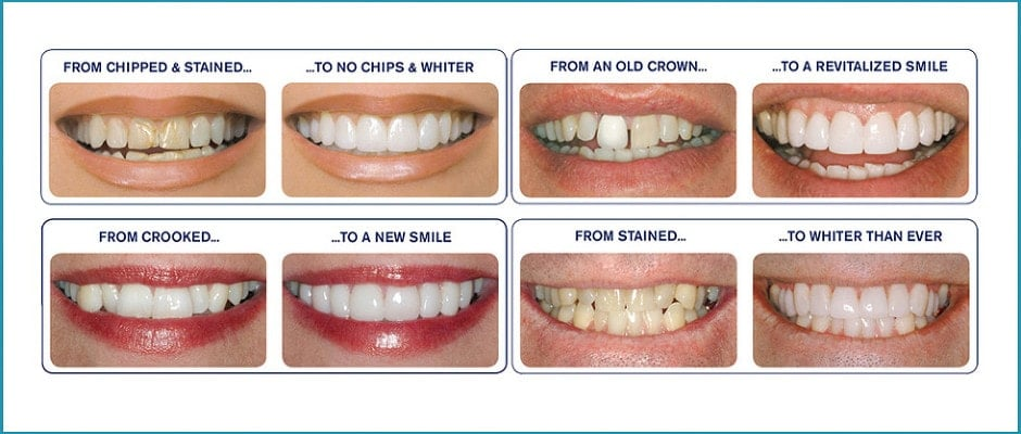 Actual results from before and after photos using dental veneers.